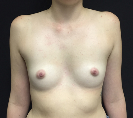 1.-Brisbane-breast-augmentation-before-and-after-photos-reviews
