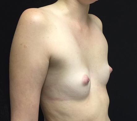 3.-Brisbane-breast-augmentation-surgeon-reviews-and-photos