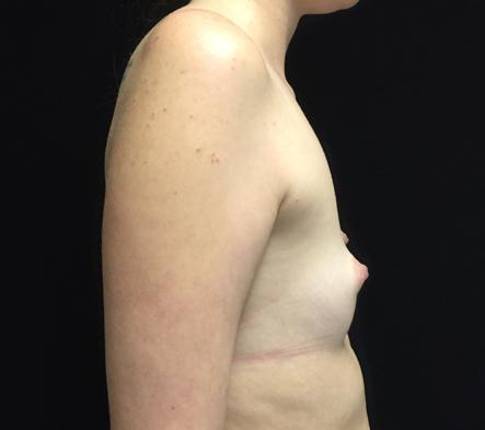 5.-Brisbane-breast-augmentation-clinic-reviews