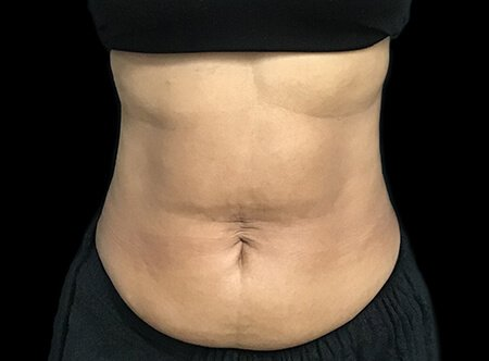 Abdominoplasty Before And After Dr Sharp AVai 2