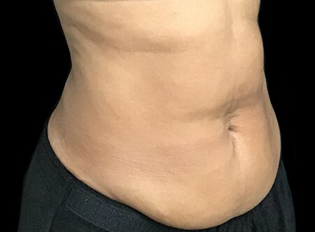 Abdominoplasty Before And After Dr Sharp AVai 3