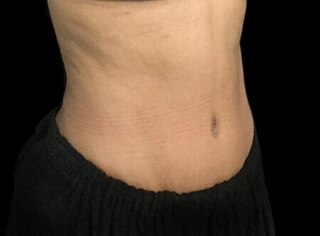 Abdominoplasty Before And After Dr Sharp AVai 3b