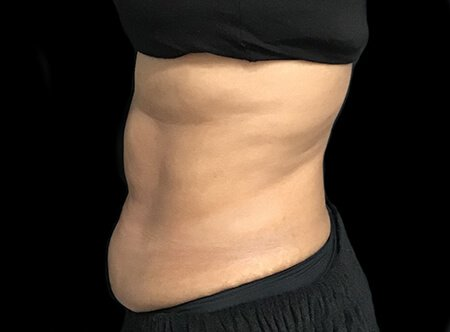 Abdominoplasty Before And After Dr Sharp AVai 4