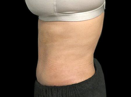 Abdominoplasty Before And After Dr Sharp AVai 4b