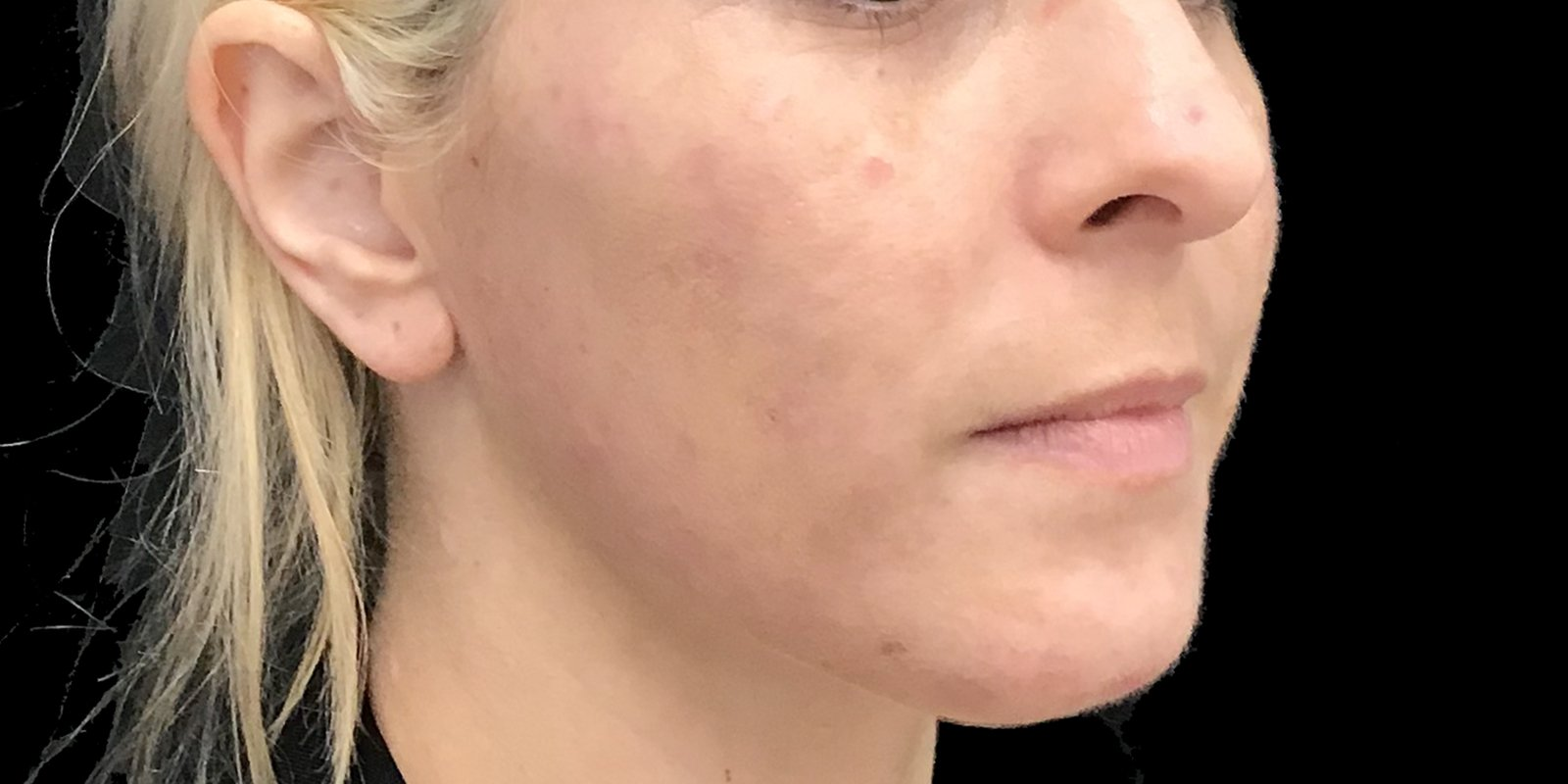 Acne After 1 Peel And Synergie Products
