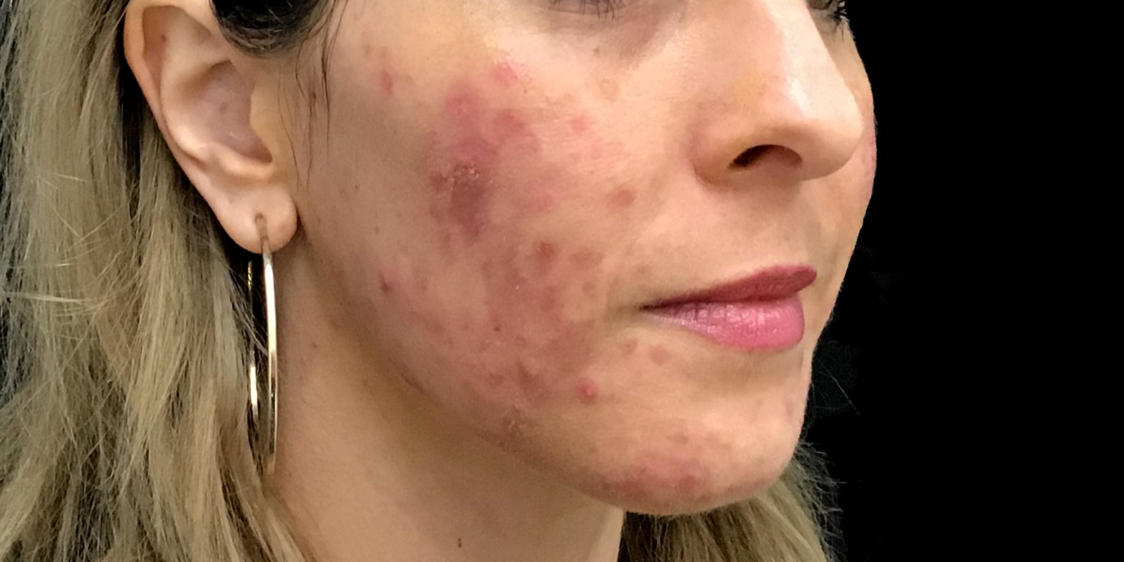 Acne Before Peel And Synergie Products