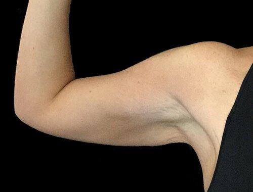 Arm Lift Brachioplasty Plastic Surgeon LB