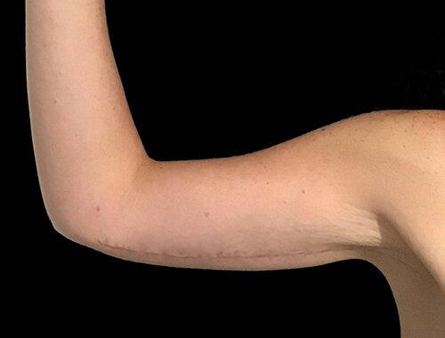Arm Lift Brachioplasty Plastic Surgeon LB2