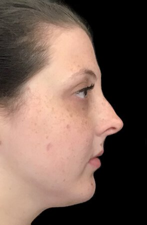 Belkyra Treatment Fat Dissolving KF 3