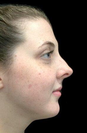 Belkyra Treatment Fat Dissolving After 1 Treatment KF 4