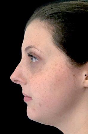 Belkyra Treatment Fat Dissolving Before KF 2