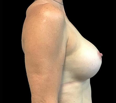 Breast-augmentation-Dr-David-Sharp-plastic-surgeon-after-ST-side-4