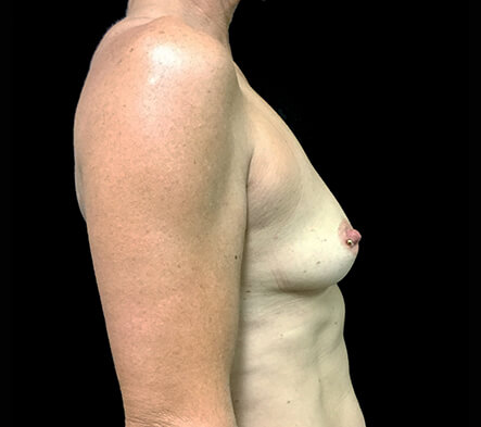 Breast-augmentation-Dr-David-Sharp-plastic-surgeon-before-ST-Side3