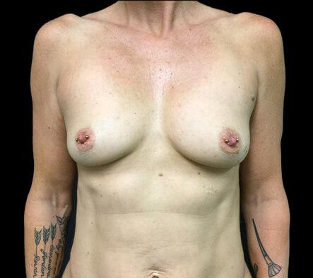 Breast-augmentation-Dr-David-Sharp-plastic-surgeon-before-ST