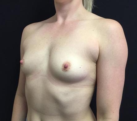 Breast-augmentation-surgeon-Brisbane-Ipswich-reviews-1c