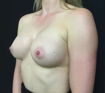 Breast-augmentation-surgeon-Brisbane-Ipswich-reviews-1d