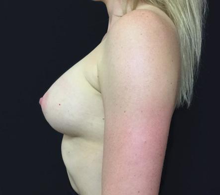 Breast-augmentation-surgeon-Brisbane-Ipswich-reviews-1f