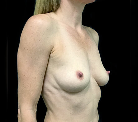 Breast-augmentation-surgeon-Brisbane-and-Ipswich-recommendations-LC-after-1