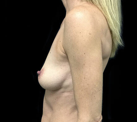 Breast-augmentation-surgeon-Brisbane-and-Ipswich-recommendations-for-surgery-LC-
