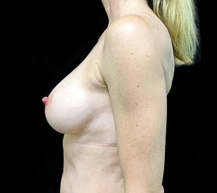 Breast-augmentation-surgeon-Brisbane-and-Ipswich-recommendations-for-surgery-LC