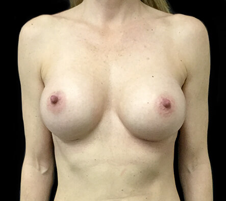 Breast-augmentation-surgeon-recommendations-Brisbane-and-Ipswich-LC-after