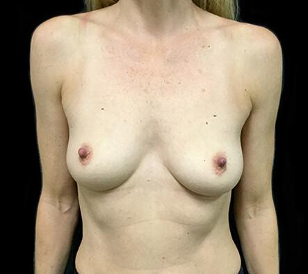 Breast-augmentation-surgeon-recommendations-Brisbane-and-Ipswich-LC