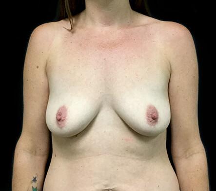 Breast-implant-enlargement-before-surgeons-Brisbane-and-Ipswich-MQ