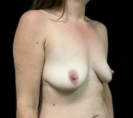 Breast-implant-enlargement-surgeons-Brisbane-and-Ipswich-MQ-before