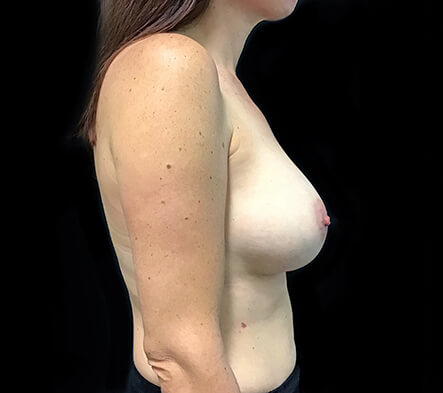Breast-implant-enlargement-surgery-Brisbane-and-Ipswich-MQ-after