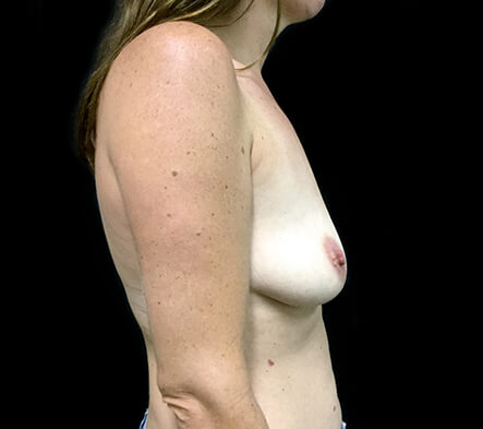 Breast-implant-enlargement-surgery-Brisbane-and-Ipswich-MQ-before