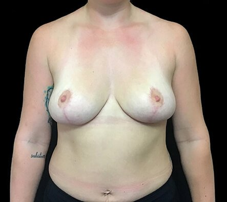Breast Reduction Dr David Sharp After PF 1