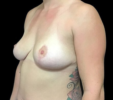 Breast Reduction Dr David Sharp After PF 2