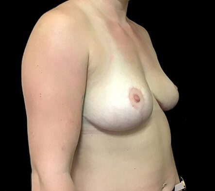 Breast Reduction Dr David Sharp After PF 3