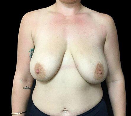 Breast Reduction Dr David Sharp Before PF 1