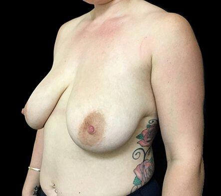 Breast Reduction Dr David Sharp Before PF 2