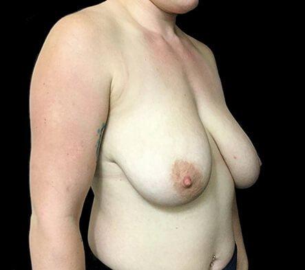 Breast Reduction Dr David Sharp Before PF 3