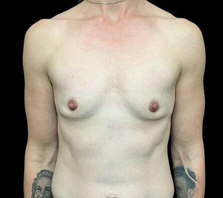 Breast Augmentation 345cc Anatomical High Profile Mentor NK 1