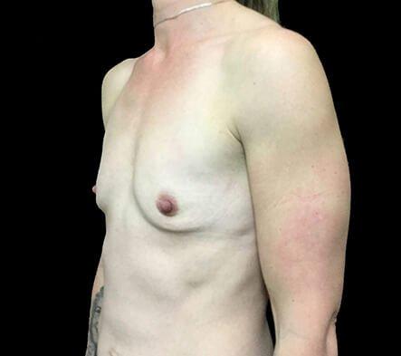 Breast Augmentation 345cc Anatomical High Profile Mentor NK 2