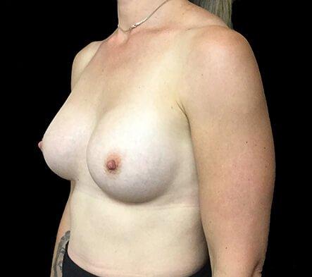 Breast Augmentation 345cc Anatomical High Profile Mentor NK 3