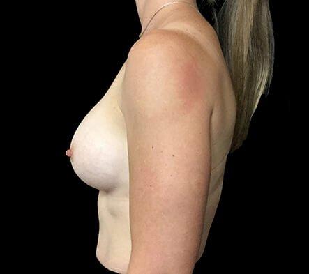 Breast Augmentation 345cc Anatomical High Profile Mentor NK 7