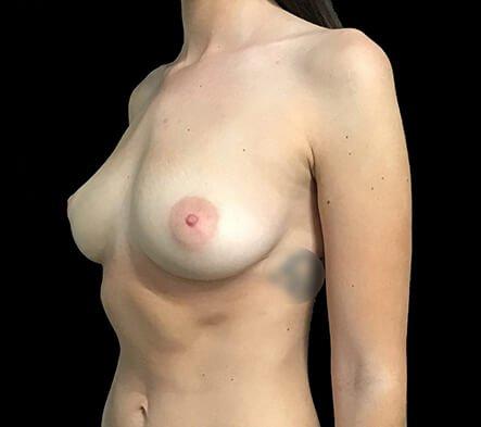 Breast Augmentation 355 And 375 Motiva Ergonomix Dr Sharp 1