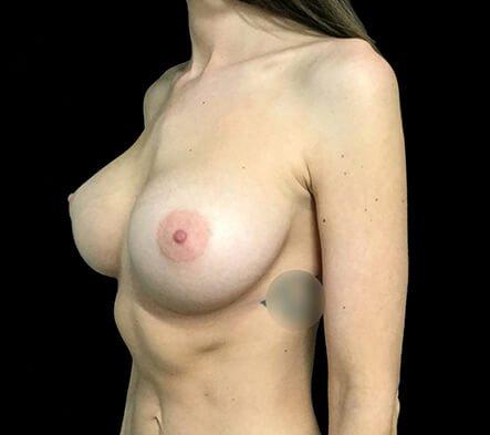 Breast Augmentation 355 And 375 Motiva Ergonomix Dr Sharp 1b