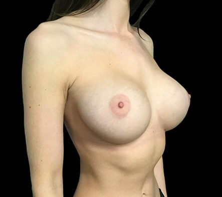 Breast Augmentation 355 And 375 Motiva Ergonomix Dr Sharp 2b
