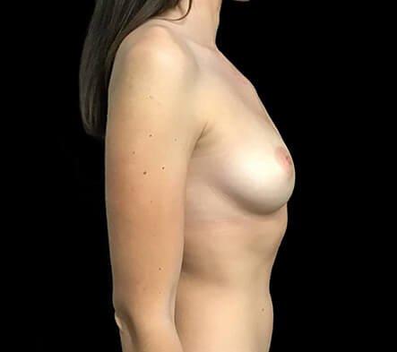 Breast Augmentation 355 And 375 Motiva Ergonomix Dr Sharp 3