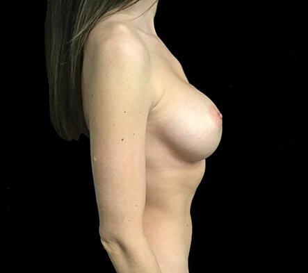 Breast Augmentation 355 And 375 Motiva Ergonomix Dr Sharp 4