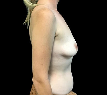 Breast Augmentation 380 And 430 Cc High Profile Anatomical BAM MS 1
