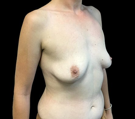 Breast Augmentation 380 And 430 Cc High Profile Anatomical BAM MS 2