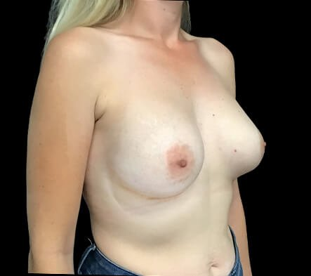 Breast Augmentation 380 And 430 Cc High Profile Anatomical BAM MS 2b