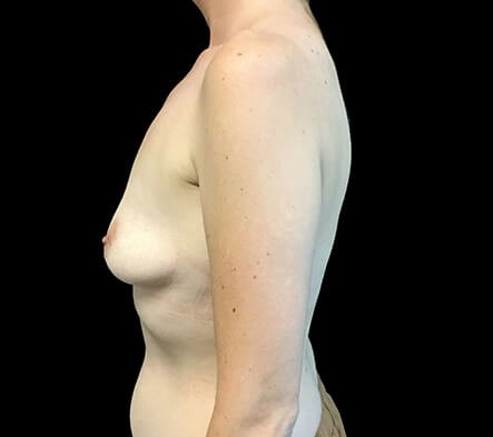 Breast Augmentation 380 And 430 Cc High Profile Anatomical BAM MS 3