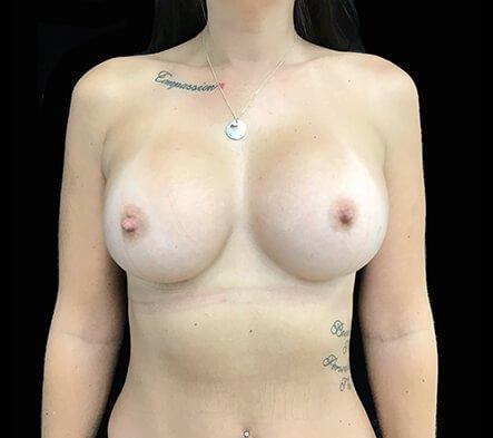 Breast Augmentation Results Brisbane Surgeons 400cc Motiva Ergonomix Implants MM 1
